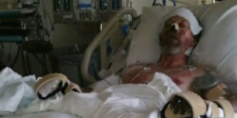 vest Bend lost both hands and both lower legs to amputation to save his life.