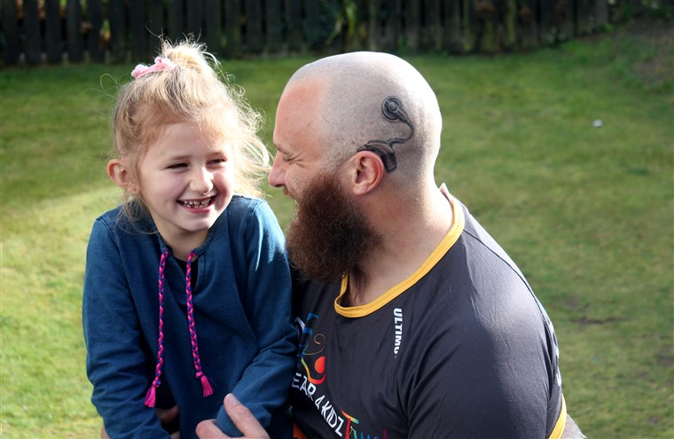 Pappa's cochlear implant tattoo matches the real one worn by daughter.
