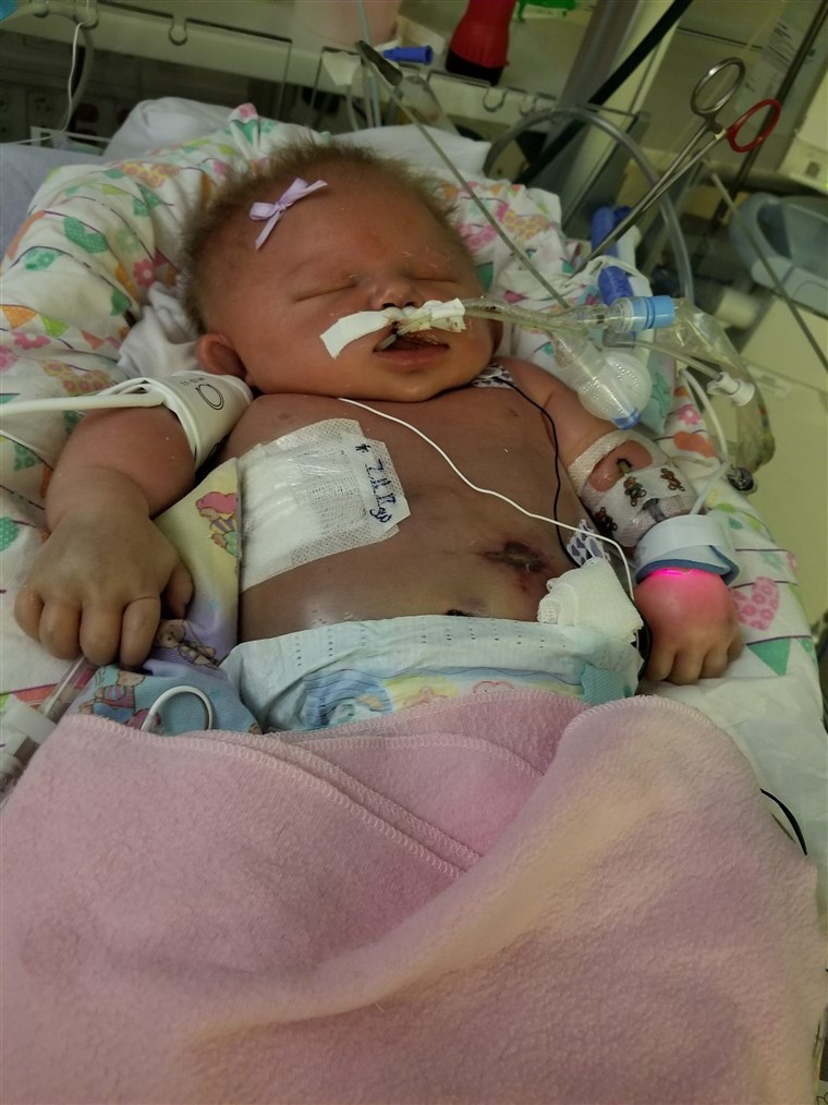 Mariana quickly declined after contracting meningitis HSV-1. At only 18 days old, she died after an intense battle with it.