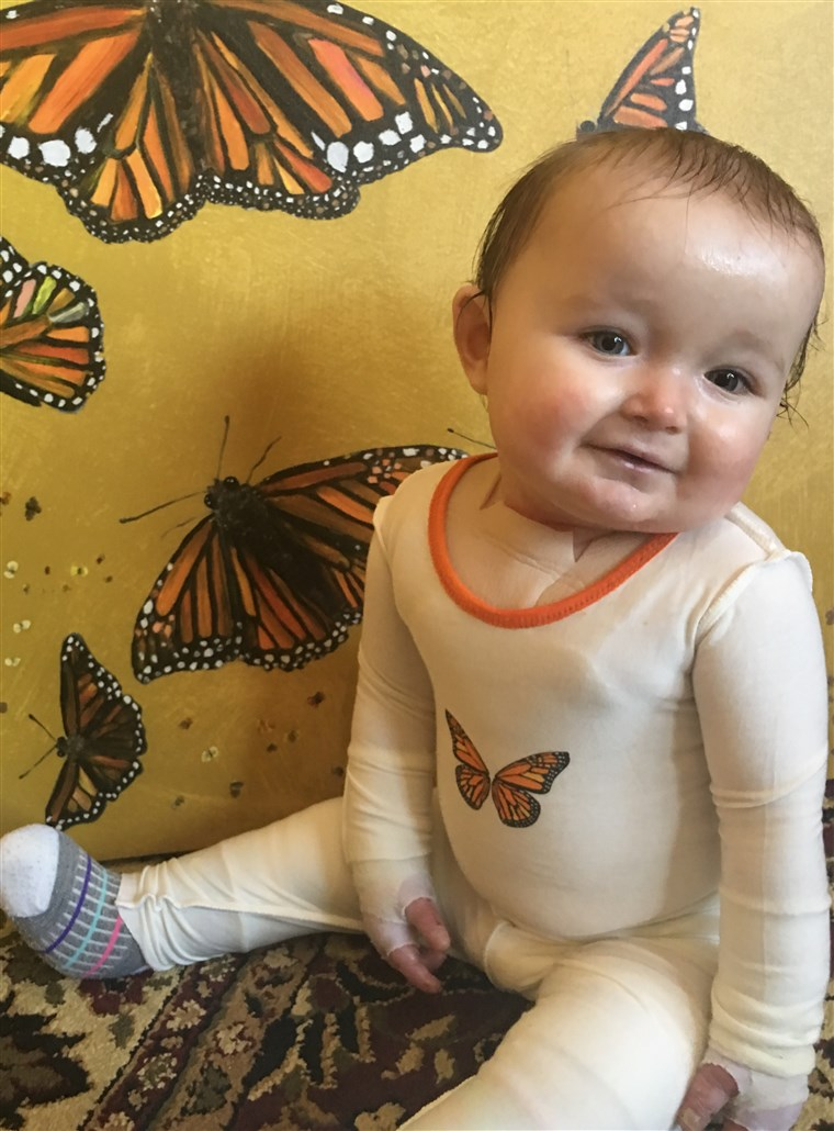 Makenzie Cadmus was born with epidermolysis bullosa, a condition that causes blistering and sloughing of the skin.