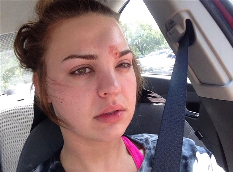 isto took several rounds of IV antibiotics to treat the cellulitis Katie Wright got after a dirty eyebrow spoolie introduced staph to her hair follicle.